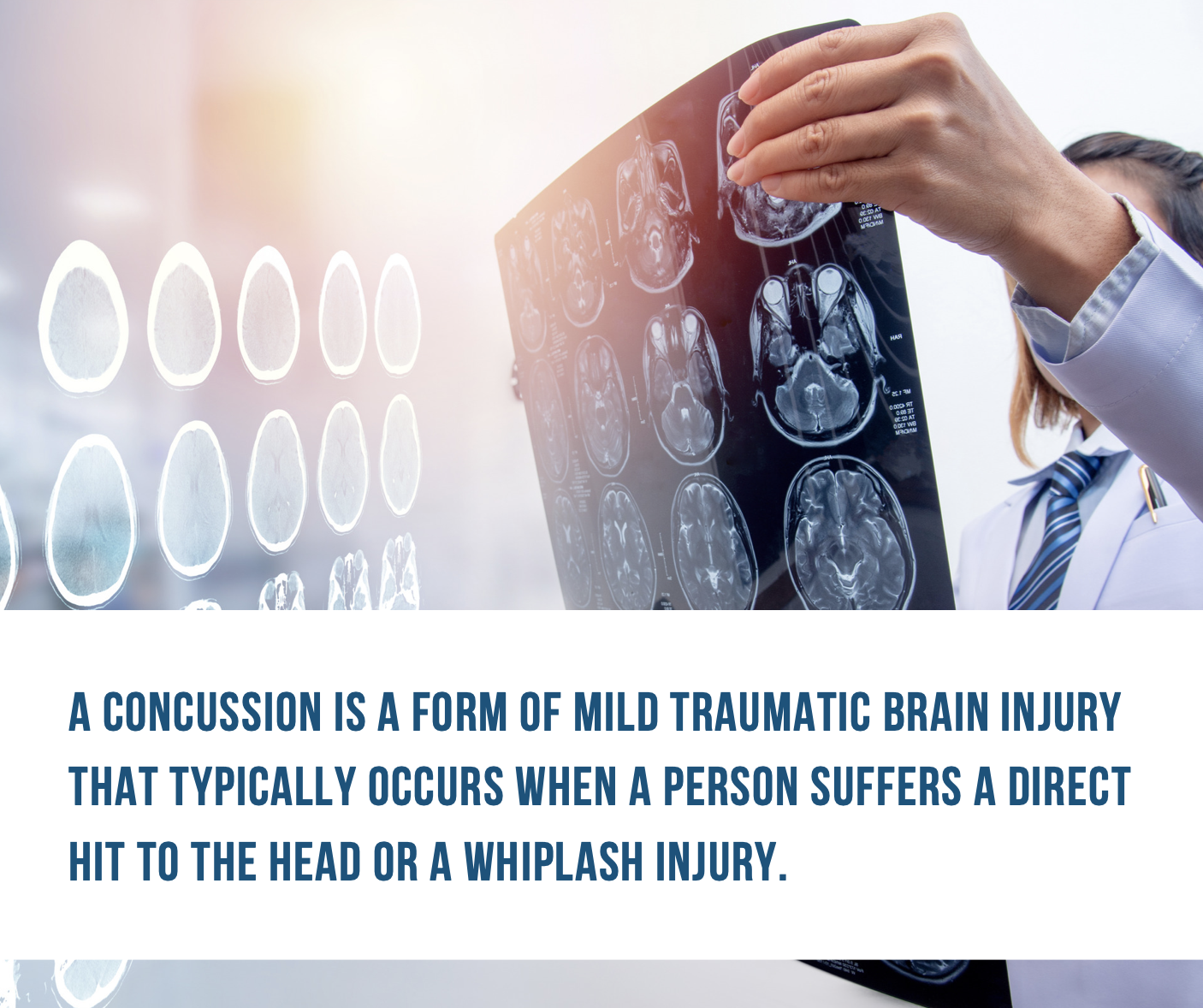 recover from a concussion, traumatic brain injury florida